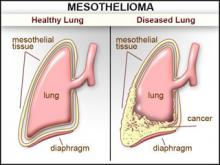 Asbestos Mesothelioma - Gendicine, May it be the Next Hopeful Treatment for Cancer?