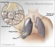 Different Types of Mesothelioma Cancer Treatments